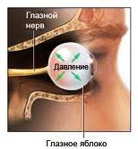 Причины глаукомы у взрослых