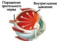 Профилактика глаукомы в картинках