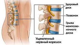 Упражнения с палкой от остеохондроза спины